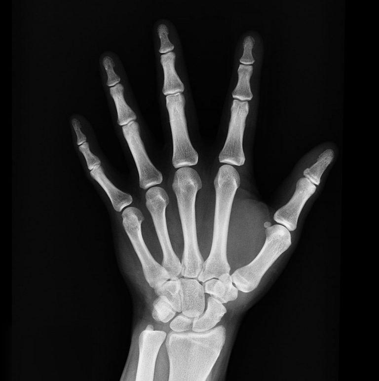 Does Low Sodium Cause Weak Bones?